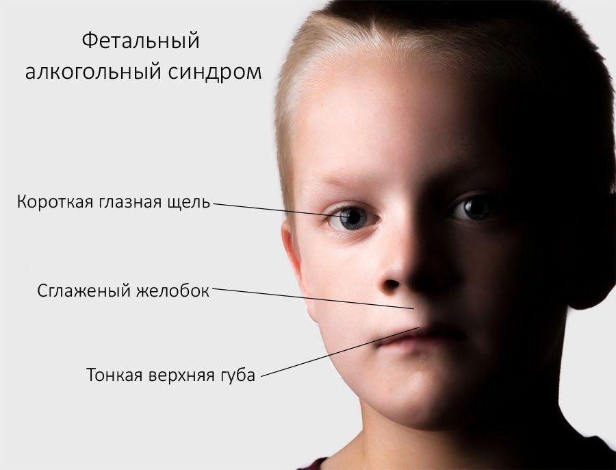 Гипертонический синдром у детей — Сайт о здоровье